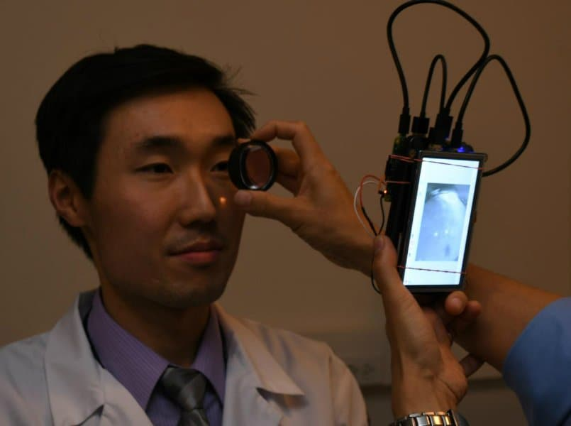 Researchers develop portable camera capable of photographing retina sans dilating